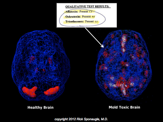 Mold toxicity SPECT brain scan vs normal